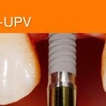 La Cátedra IVIO-UPV apuesta por los ultrasonidos en la implantología oral